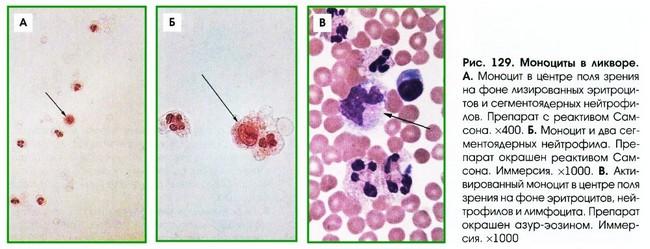 Моноциты под микроскопом