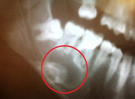 Снимок кисты зуба (фото 2)
