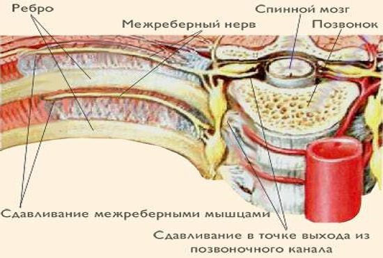 Межреберная невралгия: как происходит сдавливание нервов