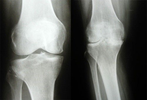 Диагностика артрита коленного сустава