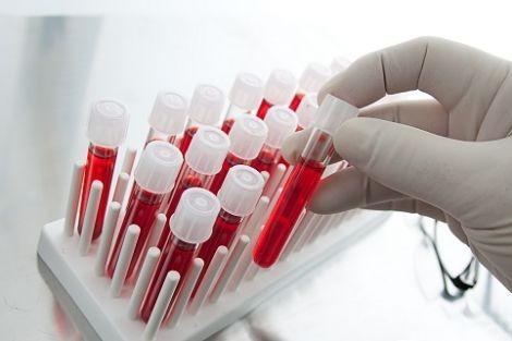 Диагностика тромбоцитопении