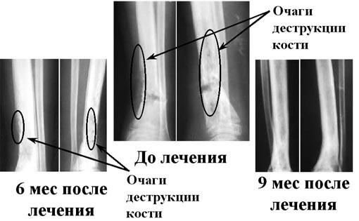 Лечение остеомиелита