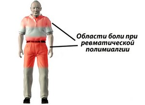 Области боли при ревматической полимиалгии