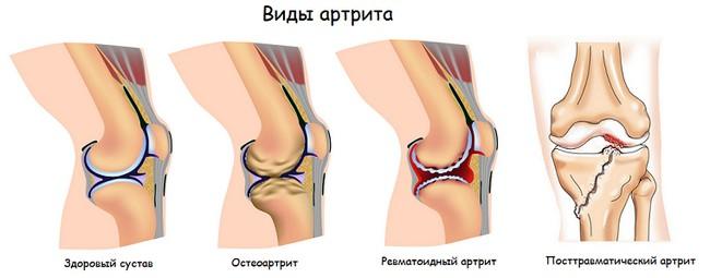 Виды артрита коленного сустава