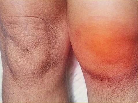 Артрит коленного сустава у взрослых людей thumbnail