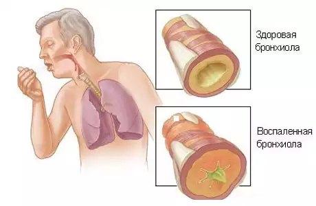 Острый бронхит вызванный аллергией thumbnail