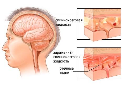 Серозный менингит