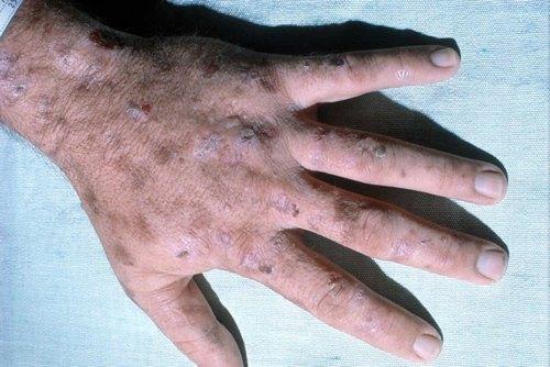 Симптомы порфирии