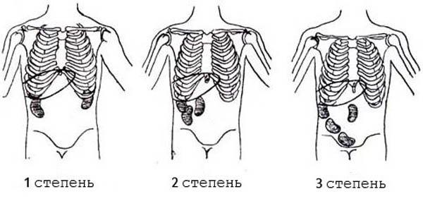 Степени нефроптоза