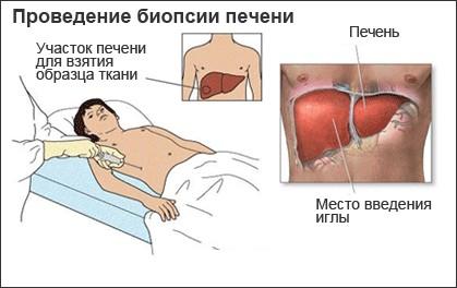 Биопсия печени