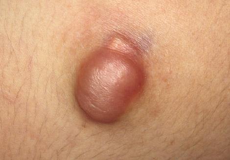 Эпителиома на коже