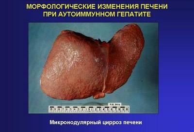 Изменения печени при аутоиммунном гепатите