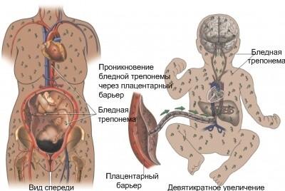 Механизм внутриутробного заражения сифилисом
