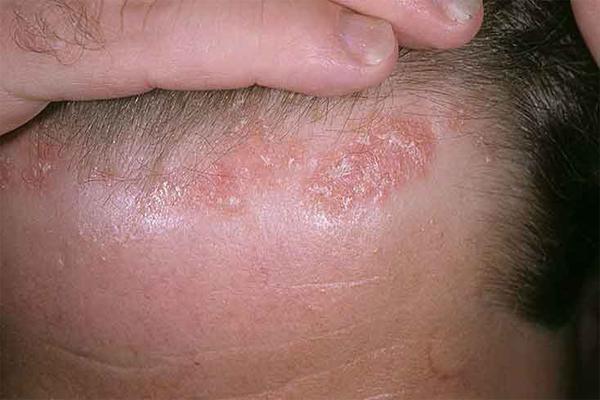 Симптомы жирной себореи кожи головы