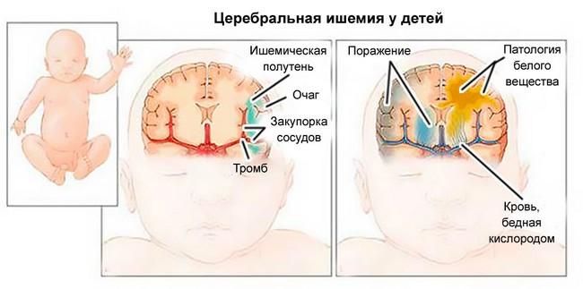 Церебральная ишемия у детей