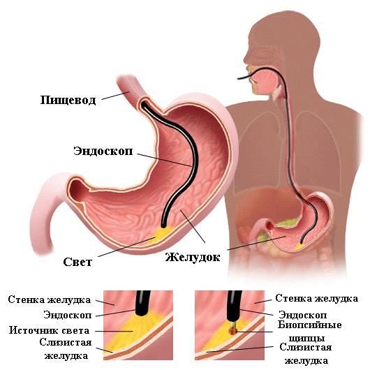 Причины анемии при метаплазии thumbnail