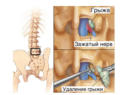 Грыжа спинного мозга лечение прогноз thumbnail