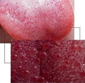 Красная сыпь на языке