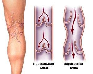 Слабость в ногах симптомы и лечение thumbnail