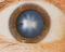 Miopia - cauze, simptome, simptome și tratament