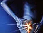 Изображение - Фиброзная дисплазия тазобедренного сустава противопоказания koksartroz-osn