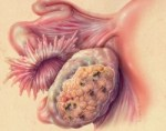 Эрозия шейки матки: виды, причины, симптомы, лечение