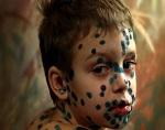 Крапивница: виды, причины, симптомы ( фото) и лечение