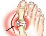 Изображение - Синовит правого сустава artrit