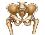Остеосклероз в теле подвздошной кости