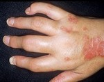 Ахиллобурсит