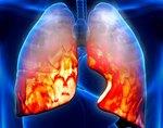 Аллергический бронхит: причины, признаки, симптомы и лечение