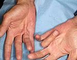 Боль внизу живота: виды боли, что делать, причины, лечение