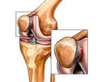 Изображение - Признаки разрыва крестообразной связки коленного сустава khondromalyatsiya-nadkolennika