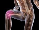 Изображение - Контрактура коленного сустава симптомы sinovit-kolennogo-sustava
