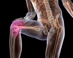 Изображение - Кости артроз тазобедренного сустава deformiruyushchij-osteoartroz
