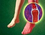 Зуд в ногах ниже колена после загара