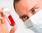 Нормы лимфоцитов в крови