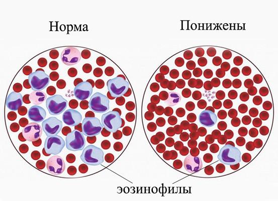 Снижение эозинофилов в крови