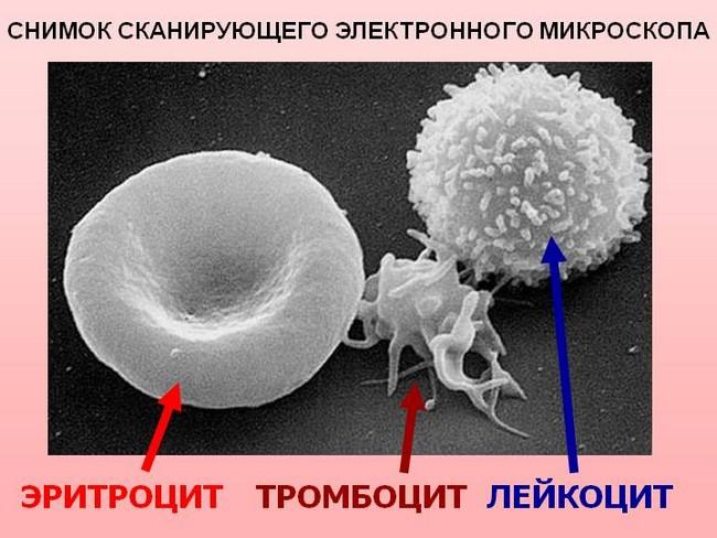 Внешний вид лейкоцита в электронном микроскопе