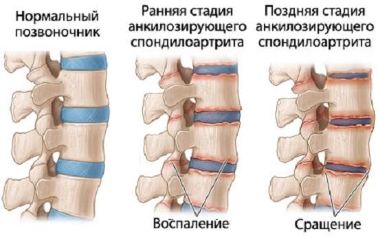 Стадии поражения позвоночника при болезни Бехтерева