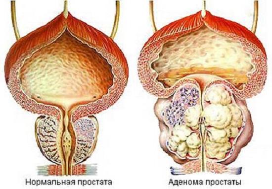 prostata-i-nederzhanie-mochi