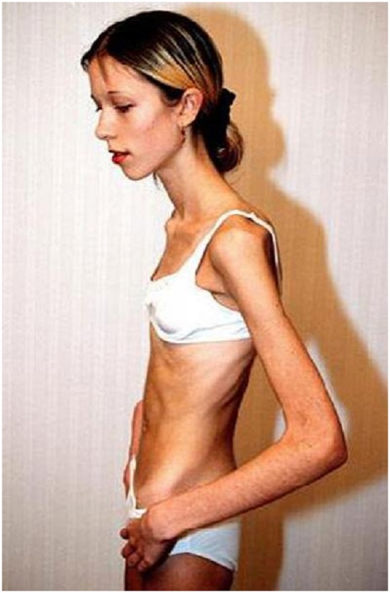 Анорексия: фото