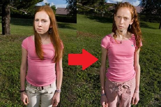 Анорексия: фото до и после