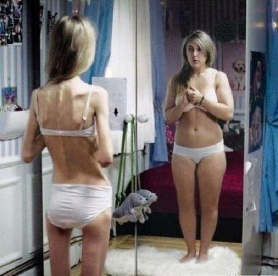Восприятие больными себя при анорексии