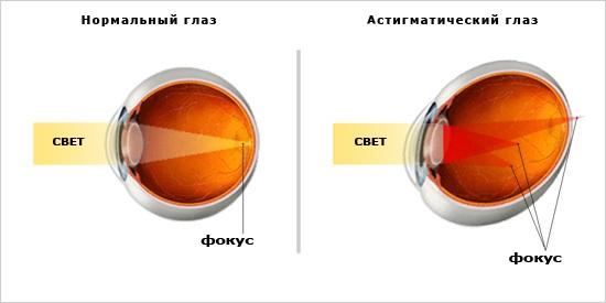 Сравнение особенностей здорового глаза и глаза при астигматизме