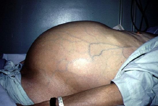 Токсический гепатит с переходом в цирроз