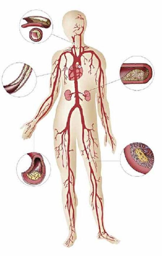 Атеросклероз: области поражения