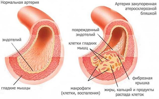 Артерия: сравнение