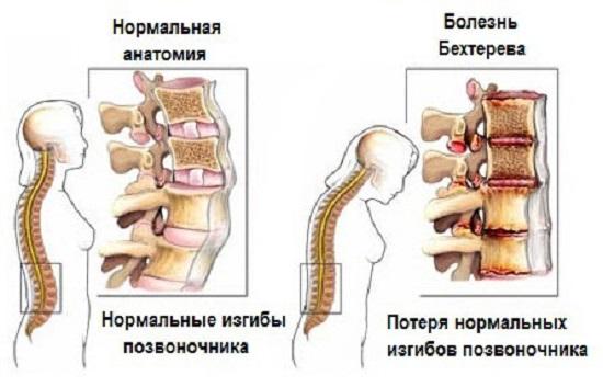 Нормальное состояние позвоночника и его поражение при болезни Бехтерева