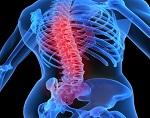 Анкилозирующий спондилоартрит (болезнь Бехтерева)